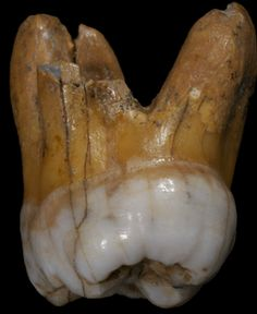 The only fossil evidence of Denisovans found to date is this tooth, another molar and the finger bone used in the recent study to sequence the genome. (Max Planck Institute for Evolutionary Anthropology/Science)