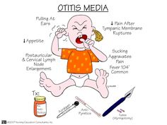Otitis Media (middle ear infection)