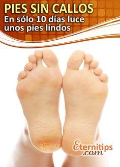 eliminar los callos de los pies de una forma efectiva