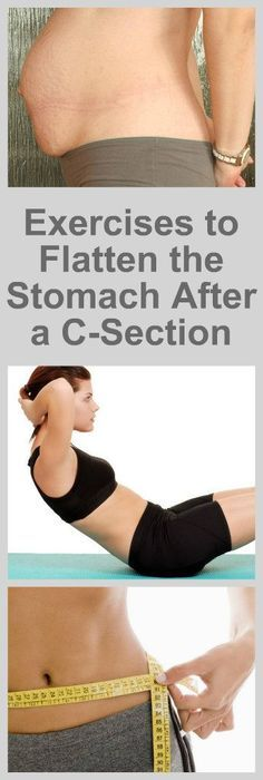 The Best Exercises to Flatten the Stomach After a C-Section 1