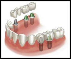 Dental Implants can replace single teeth or multiple teeth