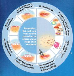Fever blisters on the mouth area. Dealing with the hsv simplex virus. http://www.coldsoresonlips.info/ cold-sore-cycle