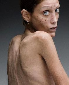 Anorexia affects mostly women