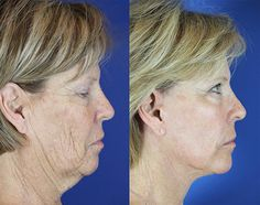 Karen – Youthful Reflections Facelift / Reflection Lift Fractional Co2 Laser Skin Resurfacing Upper Blepharoplasty