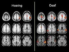 Hearing and Deaf Brains Compared ~ interesting! And may prove using ASL for kids is good for creating brain pathways? More is better! Asl Sign Language, American Sign Language, Speech Language Pathology, Speech And Language, Asl Interpreter, Hearing Impairment, Asl Signs, Libra, Deaf Culture