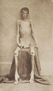 Este es el aspecto de un soldado después de sobrevivir en el campamento de prisión de Andersonville,  fue un campo de concentración confederado para prisioneros de guerra ...