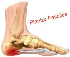 Running Tips: Plantar Fasciitis | Heel Pain when you wake up? Here's a 3 step approach to treating Plantar Fasciitis