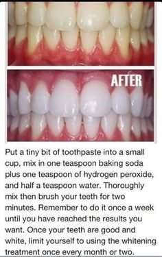 baking soda hydrogen peroxide to whiten teeth! sounds awesome but for. toothpaste baking soda hydrogen peroxide to whiten teeth! sounds awesome but for., toothpaste baking soda hydrogen peroxide to whiten teeth! sounds awesome but for. Teeth Whitening Remedies, Natural Teeth Whitening, Whitening Kit, Skin Whitening, Teeth Care, Skin Care, Health And Beauty Tips, Beauty Guide, Beauty Care