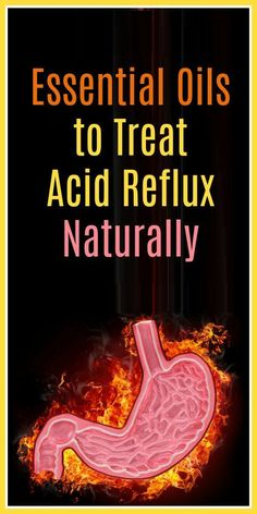 Using Essential Oils for Acid Reflux to Treat it Naturally You might be surprised how many people find that using essential oils for acid reflux is really effective. Acid Reflux Treatment, Treatment For Heartburn, Acid Reflux Remedies, Natural Remedies For Heartburn, Heartburn Symptoms, Reflux Symptoms, Reflux Disease, Heartburn Relief