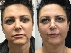 10 point #PDO #threadlift before & after image non surgical facelift & neck lift by #helenBowes http://www.hm-skinbeautiful.com/before-and-after/