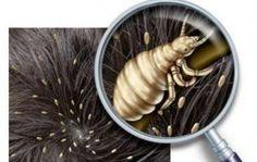 Cara menghilangkan kutu rambut dengan metode dunia kedokteran yang sudah banyak terbukti aman buat penderita kutu rambut.Kutu rambut ( pedikulosis kapitis )