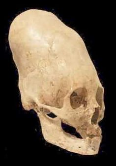cranial deformations like this one found in peru are found all over the world in tribes that would not have had any contact with each other.