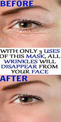 In Just 3 Use Of This Mask All Wrinkles Will Disappear From Your Face!