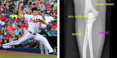 Baseball Injuries, Thursday Night, Atlanta Braves, Sport Casual, Pitch, Baseball Cards, Sports, Hs Sports, Sport