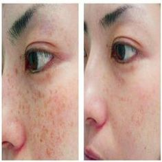 Natural Home Remedies for Brown Spots – Get Age Spots Free Skin + lemon juice to Fade Freckles Dark Spots On Face, Brown Spots, Freckle Remover, Beauty Secrets, Beauty Hacks, Beauty Ideas, Tips Belleza, Beauty Recipe, Health And Beauty Tips
