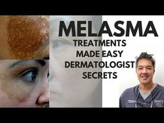 Facial Treatment, Skin Treatments, Dark Spots On Face, Hormonal Acne, Acne Skin, How To Treat Acne, Facial Care, Madeleine
