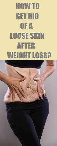 to Get Rid of a Loose Skin After Weight Loss? Find out how to get rid of a loose skin after weight loss.Find out how to get rid of a loose skin after weight loss. Tighten Stomach, Tighten Loose Skin, Loose Weight, How To Lose Weight Fast, Stomach Remedies, Natural Skin Tightening, Skin Bumps, Skin Problems, How To Get Rid