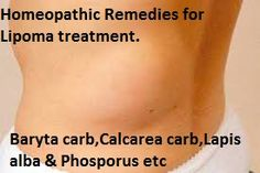 Homeopathic remedies for lipoma