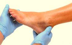 Η ουρική αρθρίτιδα, όπως υποδηλώνει και το όνομά της προκαλείται από το αυξημένο ουρικό οξύ στο σώμα και είναι μία από τις πιο οδυνηρές μορφές αρθρίτιδας... Kai