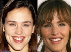 Jennifer Garner before & after lip augmentation.