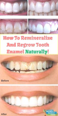 To Remineralize And Regrow Tooth Enamel Naturally natural teeth healing natural teething remedies teeth care teeth whitening Home Teeth Whitening Kit, Charcoal Teeth Whitening, Natural Teeth Whitening, Cost Of Teeth Whitening, Skin Whitening, Tooth Enamel, Oil Pulling, Teeth Care, Smile Teeth