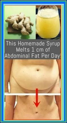 This Homemade Syrup Melts 1 cm of Abdominal Fat Per Day! Healthy Carbs, Healthy Juices, Health And Fitness Tips, Health Tips, Health Benefits, Healthy Habbits, Natural Headache Relief, Healthy Heart Tips, Healthy Lifestyle Tips
