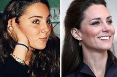 Kate Middleton Plastic Surgery Before and After Photos, Pics – Nose Job, Botox Kate Middleton, Middleton Family, Plastic Surgery Photos, Celebrity Plastic Surgery, Celebrities Before And After, Celebrities Then And Now, Princess Katherine, Princess Kate, Meghan Markle Nose Job