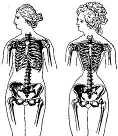 Period illustration used by those in opposition of the tightly laced corset (left) the ribcage in its natural form and (right) the effects of the corset.
