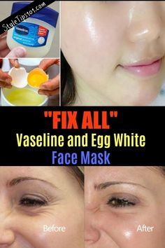 Vaseline and protein mask for EVERYTHING - Vaseline and protein face mask - # . - Vaseline and protein mask for EVERYTHING – Vaseline and protein face mask – - Beauty Care, Beauty Skin, Beauty Hacks, Top Beauty, Beauty Secrets, Egg White Mask, Egg White Facial, Egg Facial, Facial Skin Care