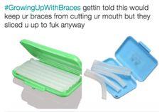 21 Things Everyone Who Wore Braces Will Definitely Remember – meme – Boomerang Braces Meme, Braces Tips, Dental Braces, Teeth Braces, Dental Care, Braces Food, Braces Problems, Cute Braces, Pink Braces