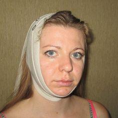 Французская повязка красоты — подтягивает овал лица без операций! - Что хочет женщина
