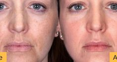 14 Essential Oils for Melasma – Bonus 5 Recipes