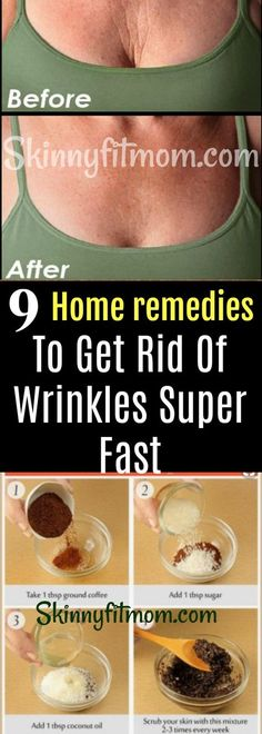 Skin Care Remedies 9 Home Remedies For Anti-Aging and To Help Make Wrinkles Around Your Face, Mouth And Eyes Disappear Super Fast! Tutorials And Step By Step Skin Care Routines. Skin Care Remedies, Home Remedies, Health Remedies, Natural Remedies, Wrinkle Remedies, Skin Care Regimen, Skin Care Tips, Skin Tips, Beauty Regimen