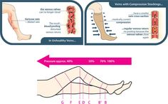 Medi Compression - How Do Compression Stockings Work?