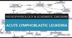 Pathophysiology & Schematic diagrams are useful to better understand a disease condition's processes. View our pathophysiology and schematic diagrams. Chronic Inflammatory Disease, Chronic Kidney Disease, Nursing Mnemonics, Nursing Diagnosis, Congestive Heart Failure Pathophysiology, Osteogenesis Imperfecta, Acute Lymphoblastic Leukemia, Nursing Information, Diabetes Mellitus Type 2