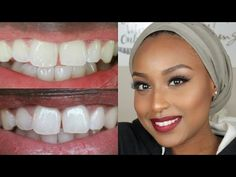 74 Best Teeth Whitening Before After Results Images Teeth