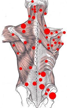 Что такое точки напряжения в мышцах и как их лечить. Как избавиться от боли в мышцах
