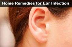 Top 10 Home Remedies For Ear Infections #top10 #homeremedies #earinfections