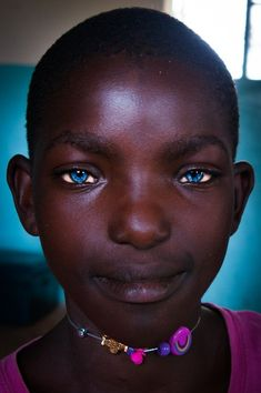 """beauafrique: """"YES black people can have blue or hazel eyes and no they don't NEED to be mixed race to do so. People With Blue Eyes, Black People, African Girl, African Beauty, Pretty Eyes, Cool Eyes, Stunning Eyes, Amazing Eyes, We Are The World"""
