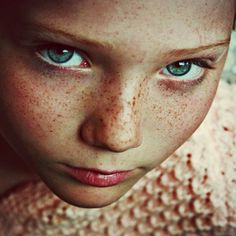 Top 5 Herbal Remedies For Freckles