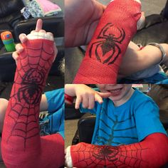 Cool arm cast. Spider-Man. Sharpie decorated. Broken arm. Decorated cast.