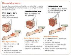 NY Burn Injury Lawyer Explains how Burn Injuries Can Come in Many Forms - Frekhtman & Associates Medical Surgical Nursing, Icu Nursing, Nursing Tips, Nursing Notes, Nursing Career, Nursing Assistant, Burn Wound Care, 2nd Degree Burns, Burn Injury