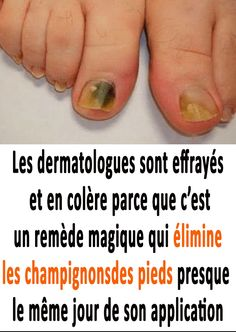 Home Remedies, Natural Remedies, How To Grow Nails, Body And Soul, Wellness, Natural Medicine, Health Care, Fit, Hair Beauty