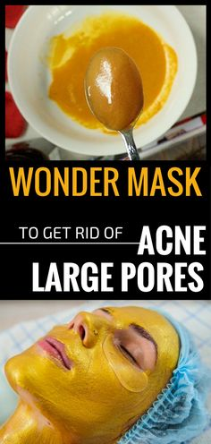 Oily skin goes hand in hand with acne, blackheads and large pores. These are the most common face problems that 70% of the population is facing. And it's a continuous fight, and the best weapons to fight against large pores and acne are found in the nature. So, the following natural treatment to combat acne …