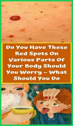 Natural Health Tips, Health And Beauty Tips, Health And Wellness, Health Care, Wellness Quotes, Women's Health, Health Benefits, Herbal Remedies, Health Remedies