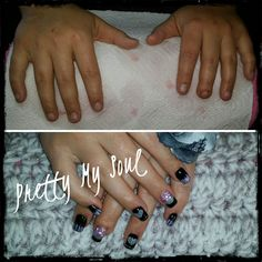 What a transformation! Nails, Pretty, Finger Nails, Ongles, Nail, Nail Manicure