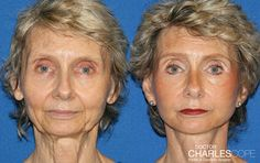 7 Tell-Tale Signs You Need Facelift Surgery