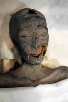 "( mummified ) King Tut ( died as a teenager ). Had many health problems, cleft palate & club foot. His "" abnormalities "" are credited to the fact, his parents were brother and sister."