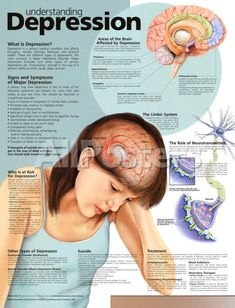 Understanding depression: What is depression? Who is at risk for depression? Areas of the brain Affected by depression; Signs and Symptoms of Major Depression; Types of depression; What Is Depression, Depression Help, Depression Symptoms, Depression Remedies, Depression Awareness, Managing Depression, Psychology Facts, Mental Health, Human Body