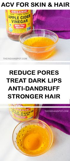 Amazing+Apple+cider+vinegar+remedies+for+skin+and+hair